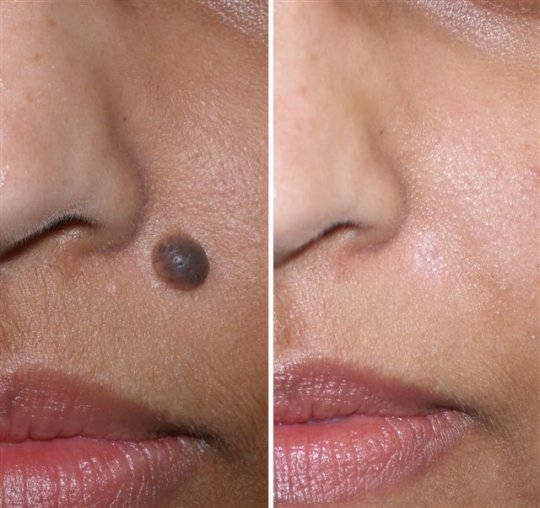 Moles on skin