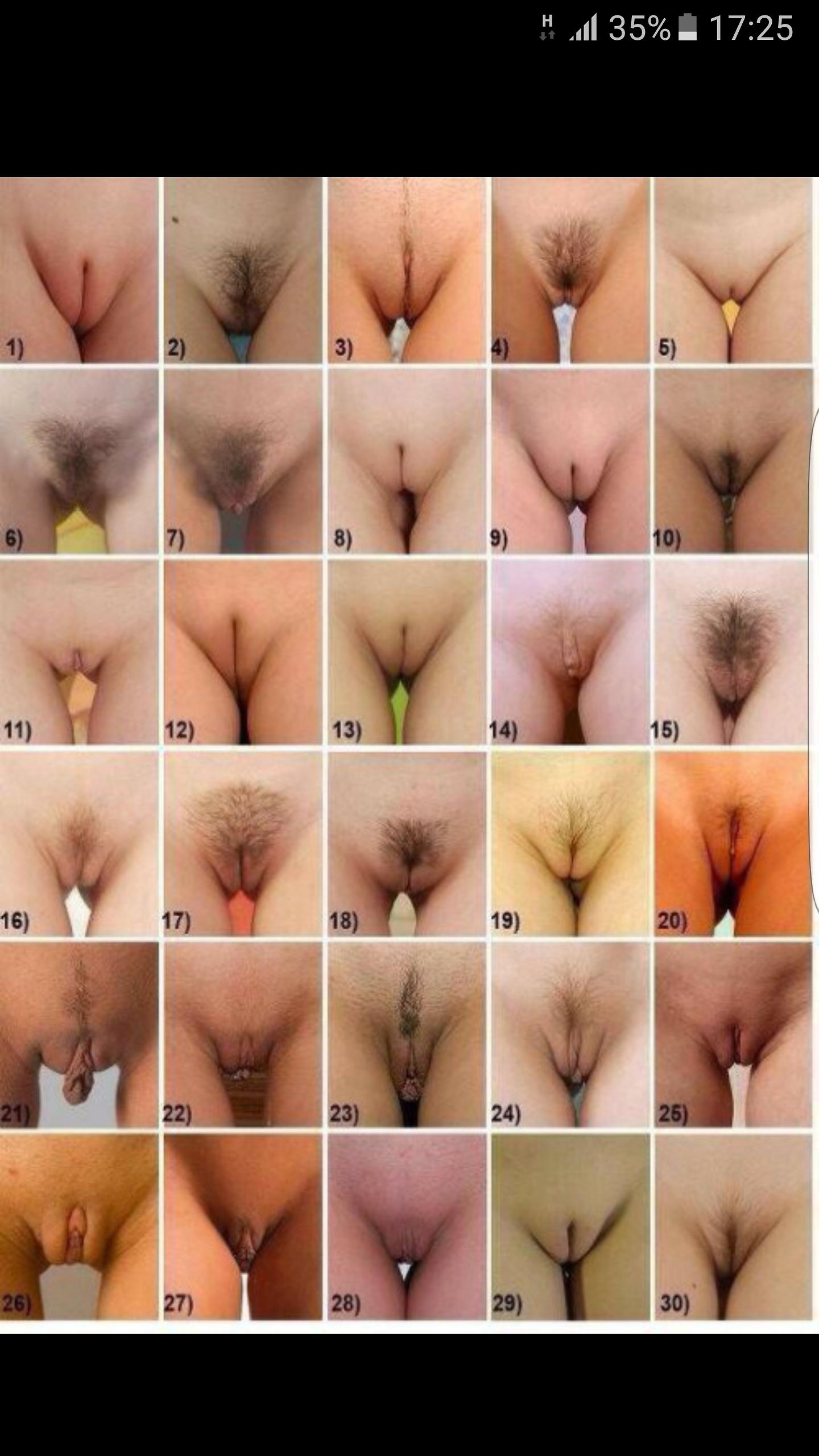 Классификация вагин фото набила рожу