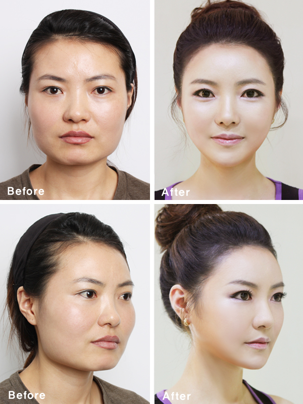 Asian Celebrities Plastic Surgery 114