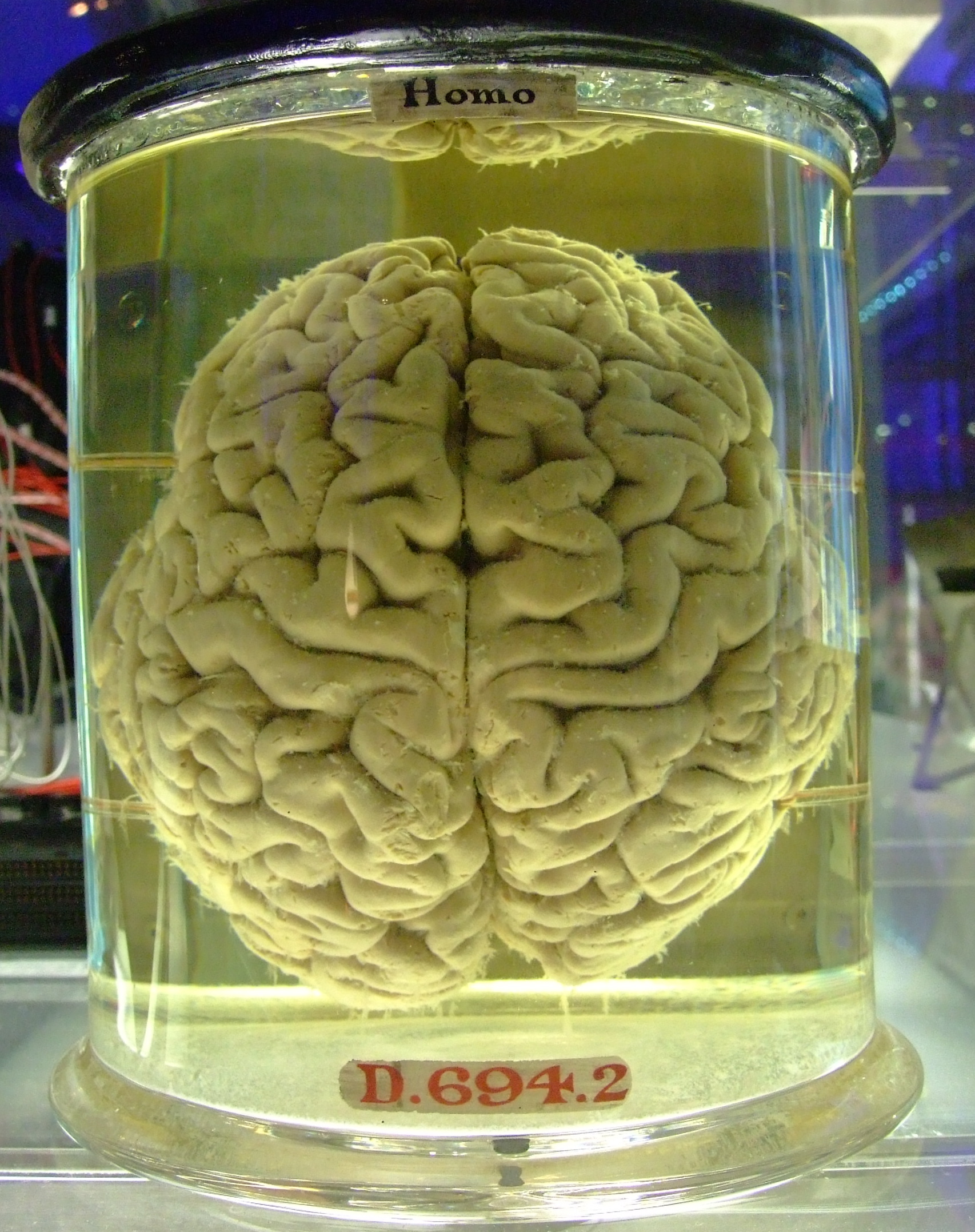 BRAINS-IN-VATS