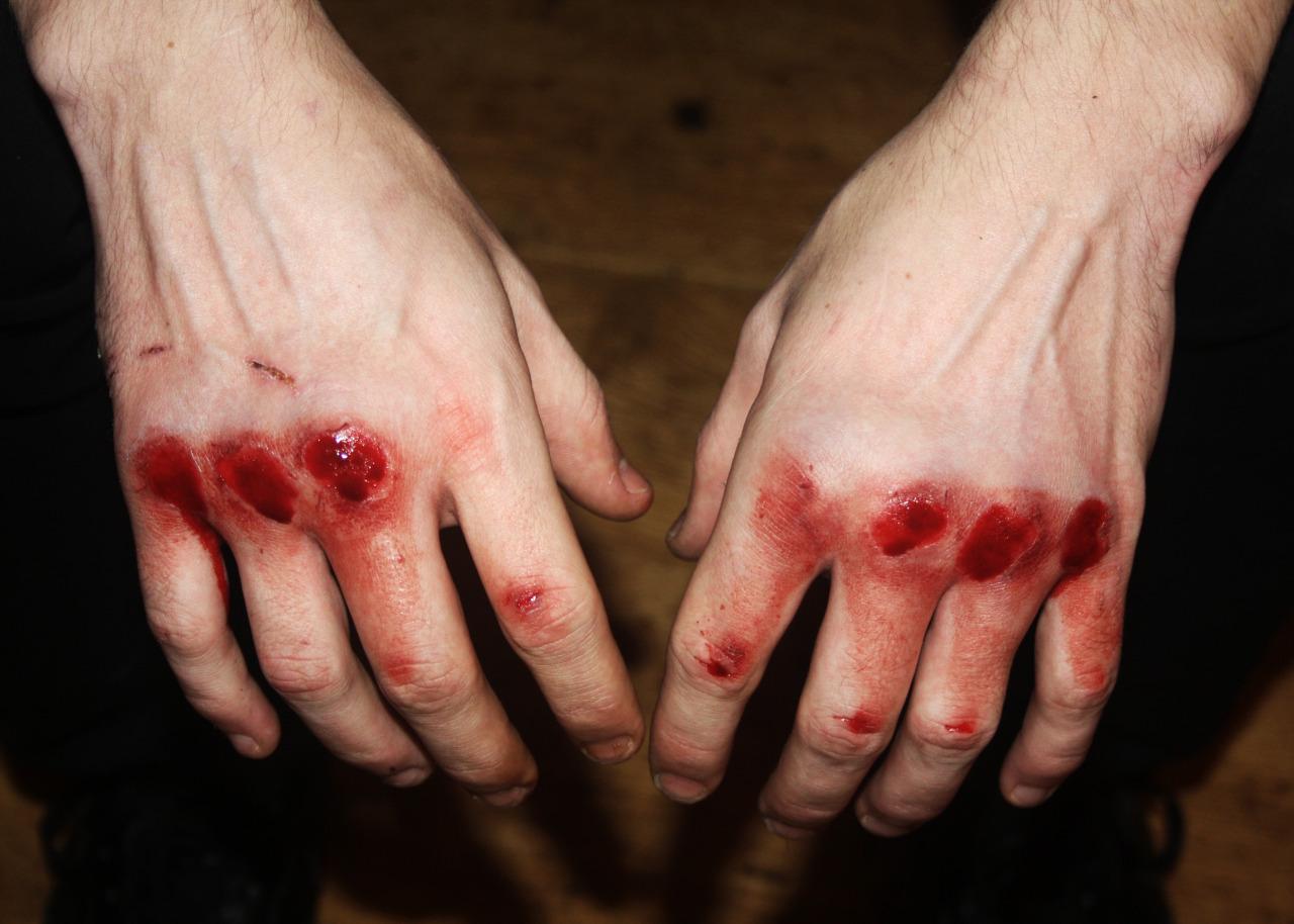 Фото кровь с очка 1 фотография