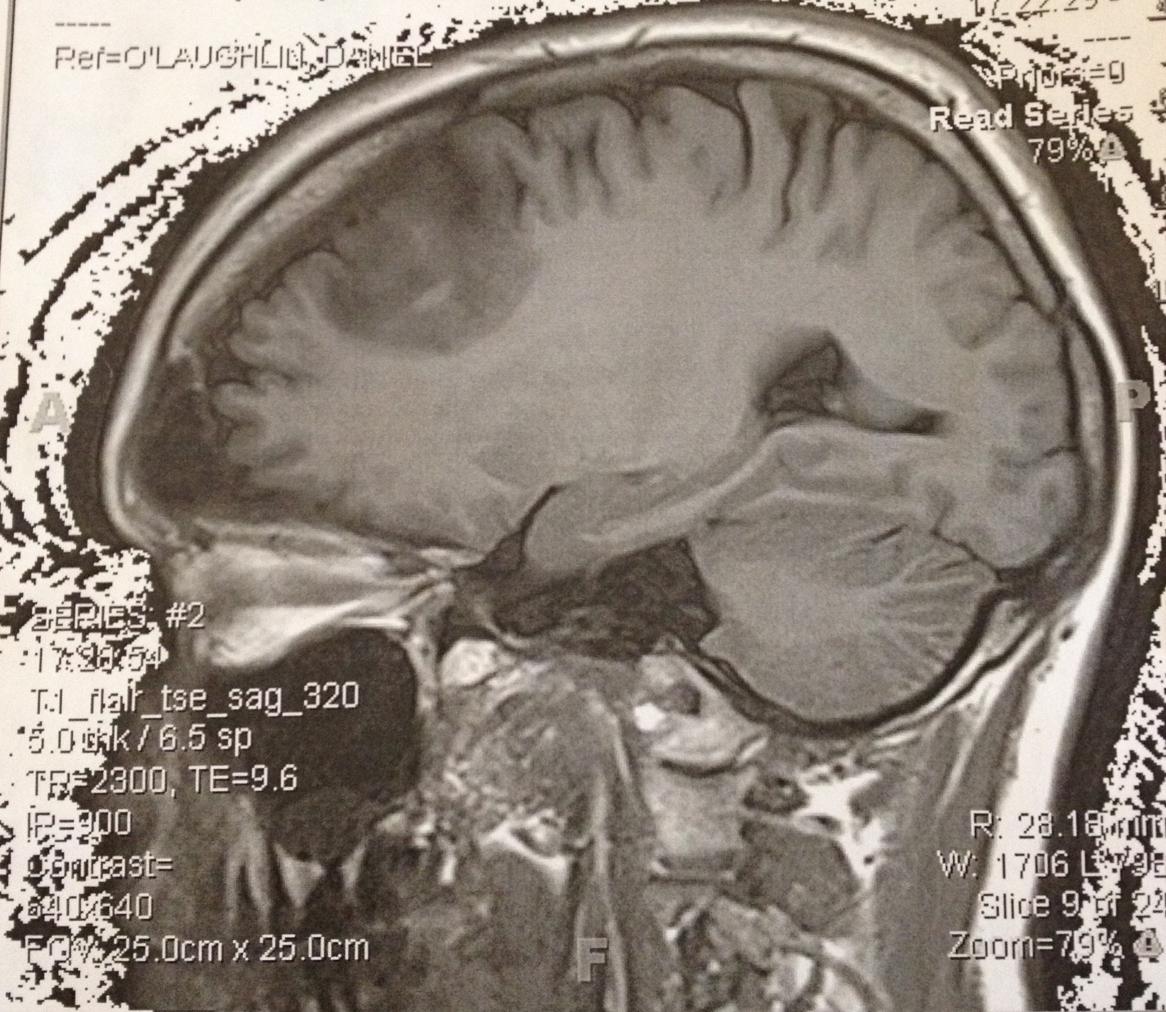 My Husband's Tumor