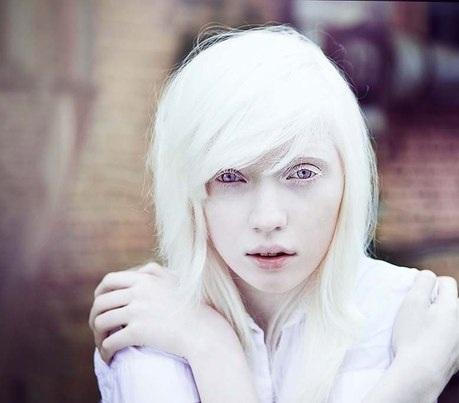 Albino person